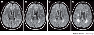 MS brain with lesions